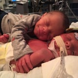 This Photo of Infant Twins Hugging Is Going Viral Following the Death of 1 Baby