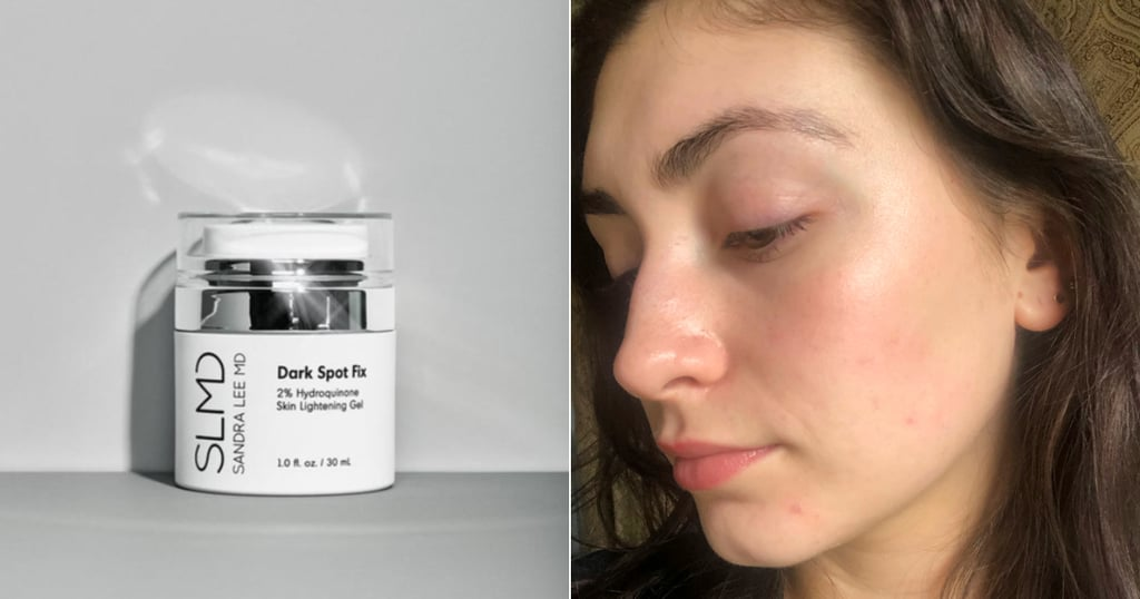 SLMD Skincare Dark Spot Fix Review