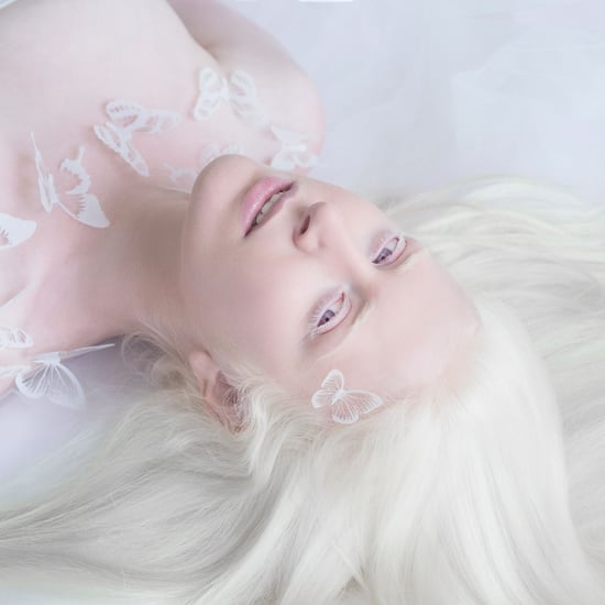 Albinismus Fotos