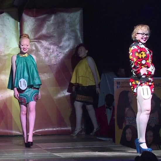 Albinism Beauty Pageant (Video)