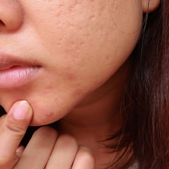 What to Know About Treating Cystic Acne, Per Dermatologists
