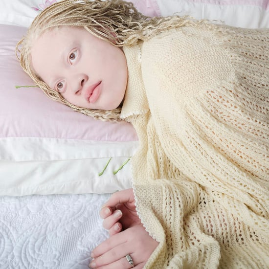 Albinism Photographs