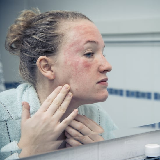 Facial Eczema: How to Treat, Calm, and Prevent It