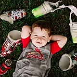 Photo Shoot of Toddler Who Lost Both Legs