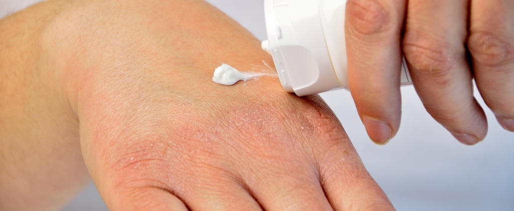 How to Treat & Prevent Eczema Flare Ups, According to Derms
