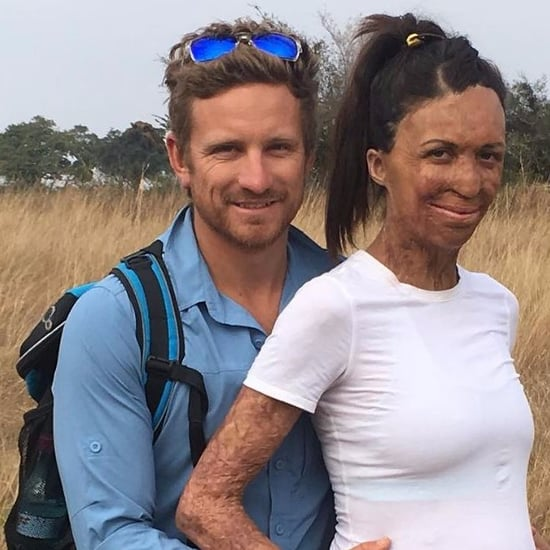 Turia Pitt's Baby Bump Pictures