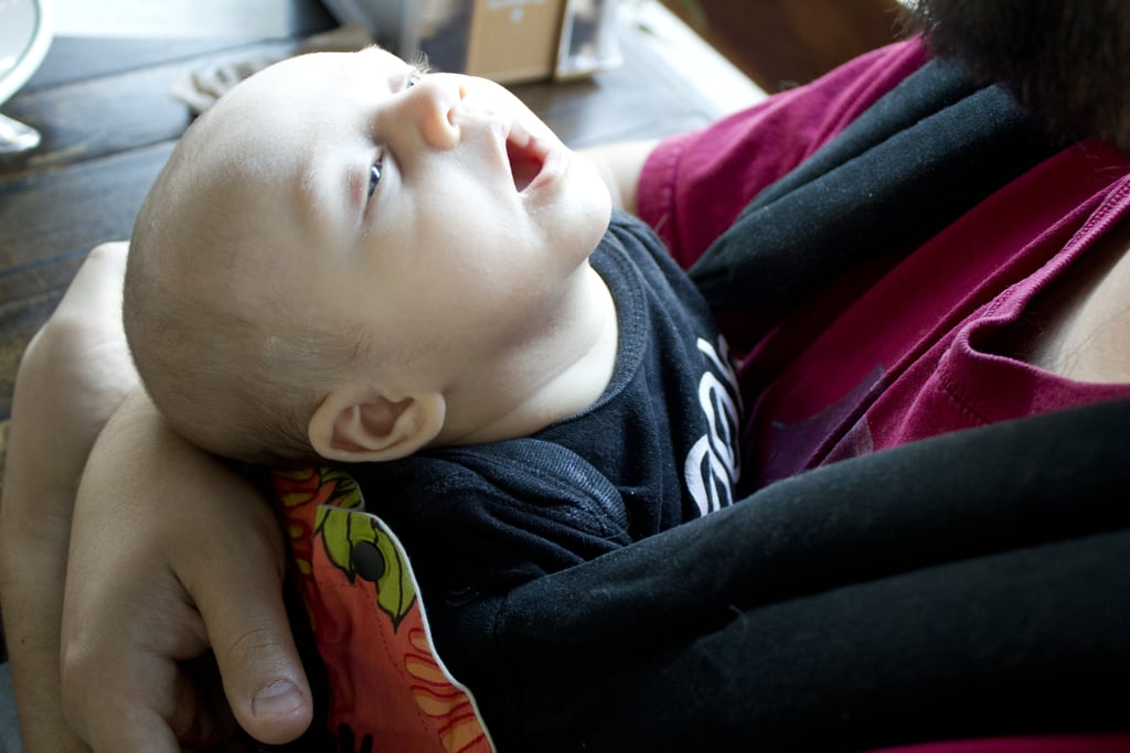 Not Giving the Baby Neck Support