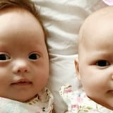 Rare Set of Twins Where Only One Baby Has Down Syndrome