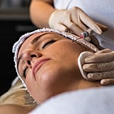 Getting Fillers Near Your Wedding Day