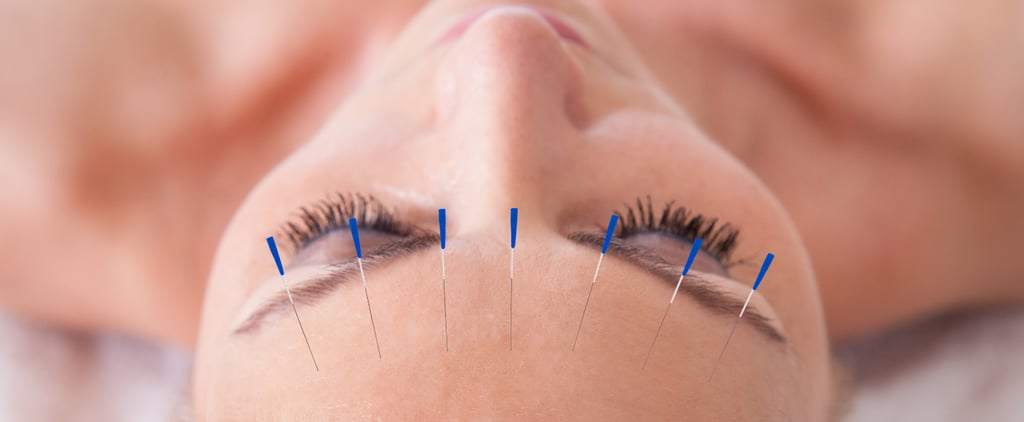 Why You Should Ditch Your Dermatologist For Acupuncture