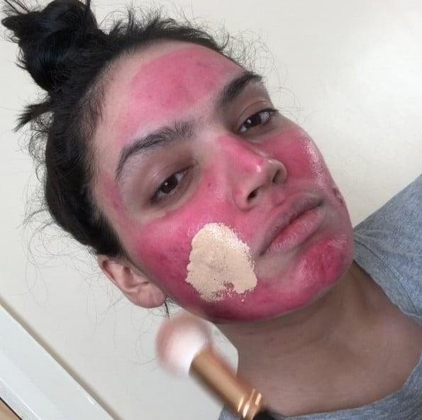 Fenty Beauty Covers Woman's Acne
