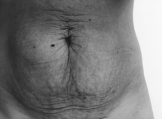 Mom Explains Why She's Proud of Her Body After Giving Birth