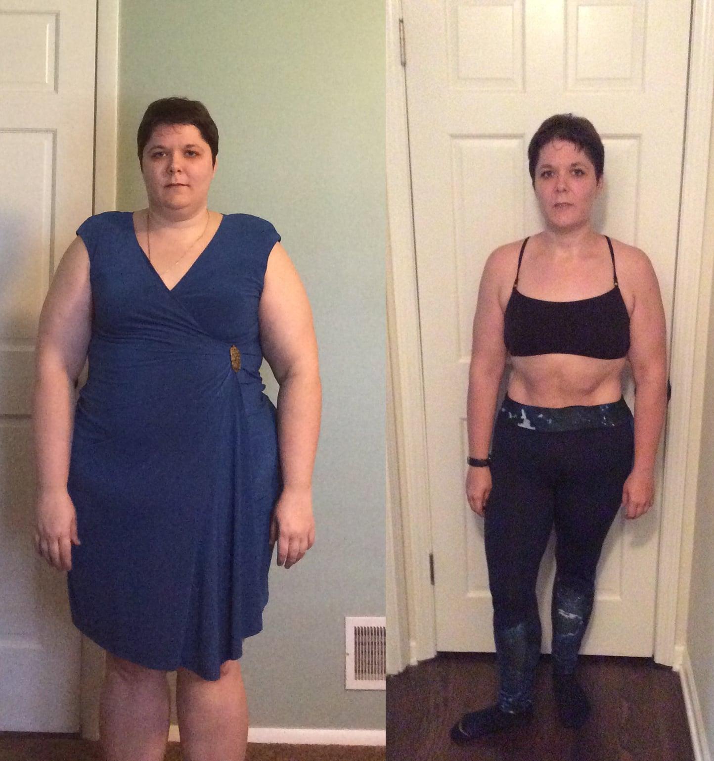 Gastric Sleeve Surgery Weight Loss Transformation Popsugar Fitness