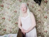 13 Spellbinding Portraits of People With Albinism