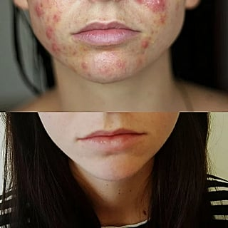 Can You Use Spironolactone to Treat Acne?