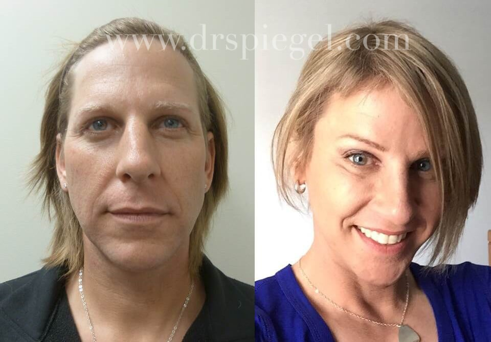 Transgender Surgeries Male-To-Female  Popsugar Beauty-8542