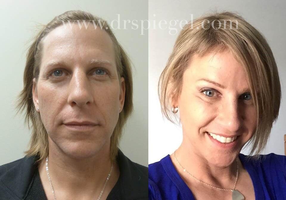 Transgender Surgeries Male-to-Female