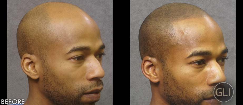 Hair tattoos for baldness popsugar beauty photo 9 for Head tattoo hairline