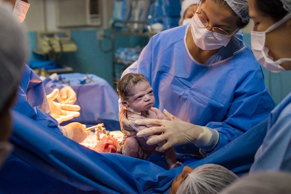 This Baby Was Not Impressed in the Least With Being Born — Just Look at Her Face!