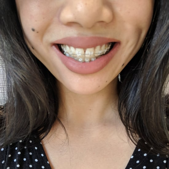 Should I Get Adult Braces?