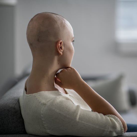 Bald Pranks Are Harmful to Alopecia and Hair Loss Community