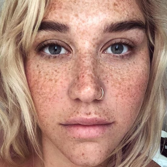 Celebrities With Freckles in No-Makeup Selfies