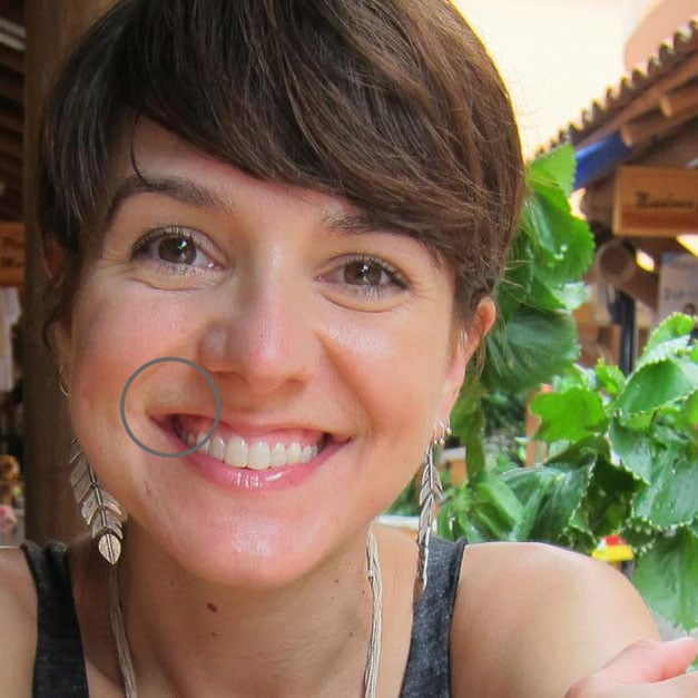 Laser Hair Removal Results Popsugar Beauty