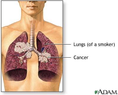 Your Children Breathe Secondhand Smoke