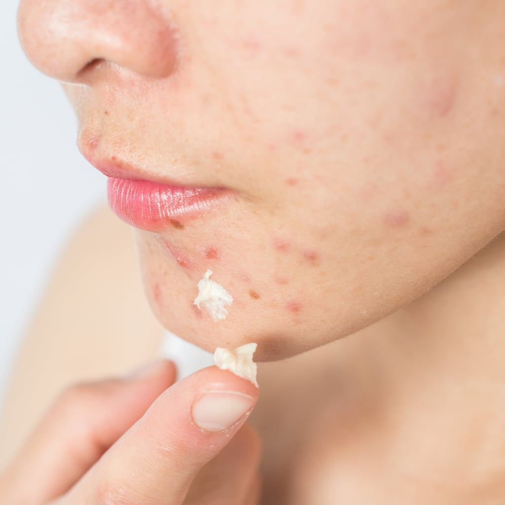 Does Sudocrem Help Treat Spots and Acne? We Asked a Derm