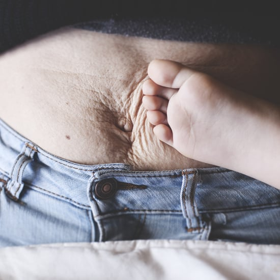 Why I'm No Longer Ashamed of My Stretch Marks