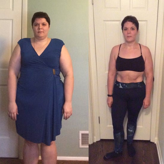 Gastric Sleeve Surgery Weight-Loss Transformation