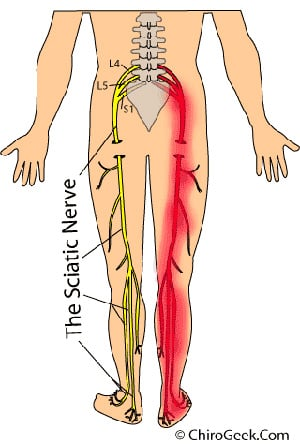 What's the Deal With:  Sciatica