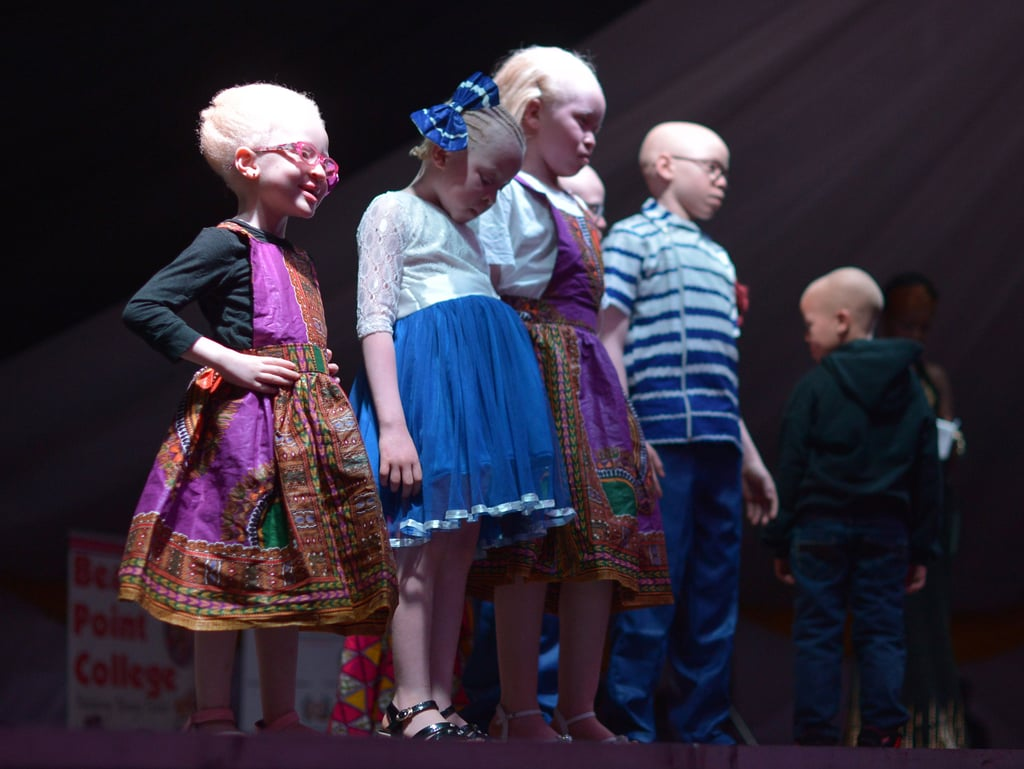 Albino Beauty Pageant 2016 | Pictures