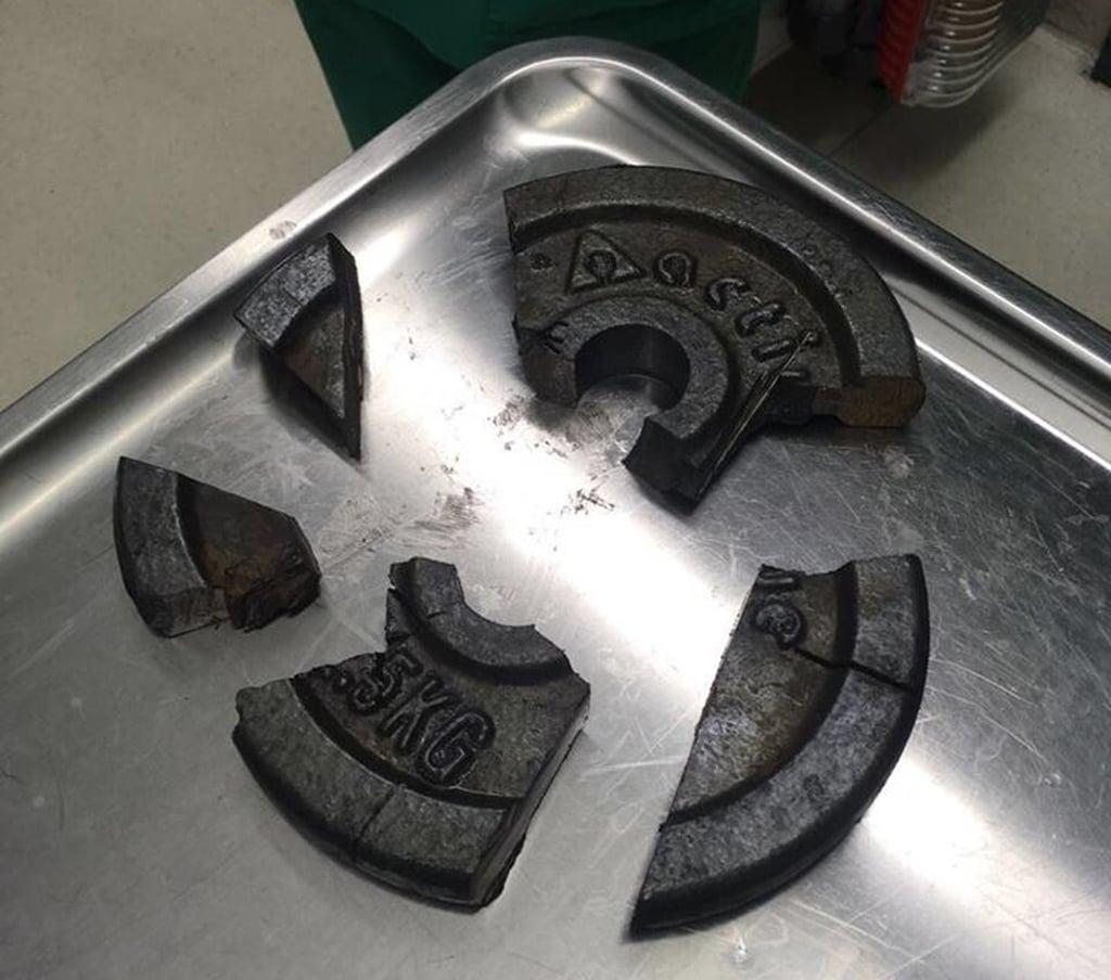 Man Gets Penis Stuck in Barbell