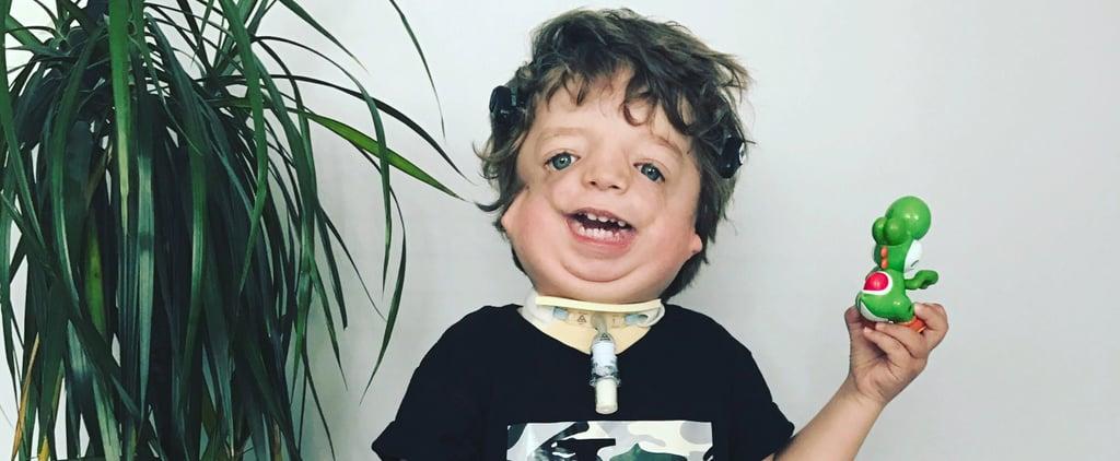 Baby Model With Facial Deformity