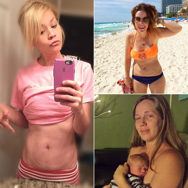 Postpartum Body Stories From 2015