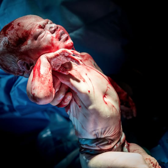 Baby Born With Umbilical Cord Wrapped Around Her Stomach