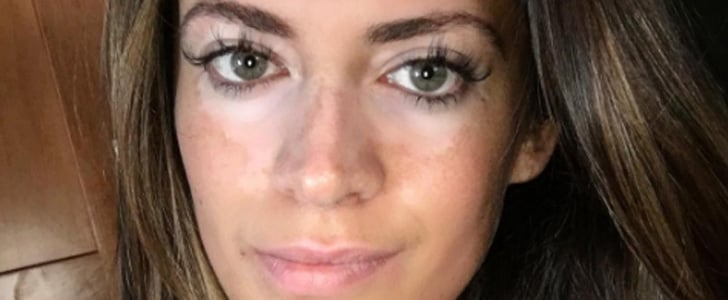 After 10 Years of Covering Her Skin, 1 Model Reveals She Has Vitiligo
