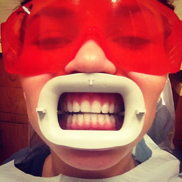Chrissy shared a photo while getting her teeth whitened. Source: Instagram user chrissy_teigen