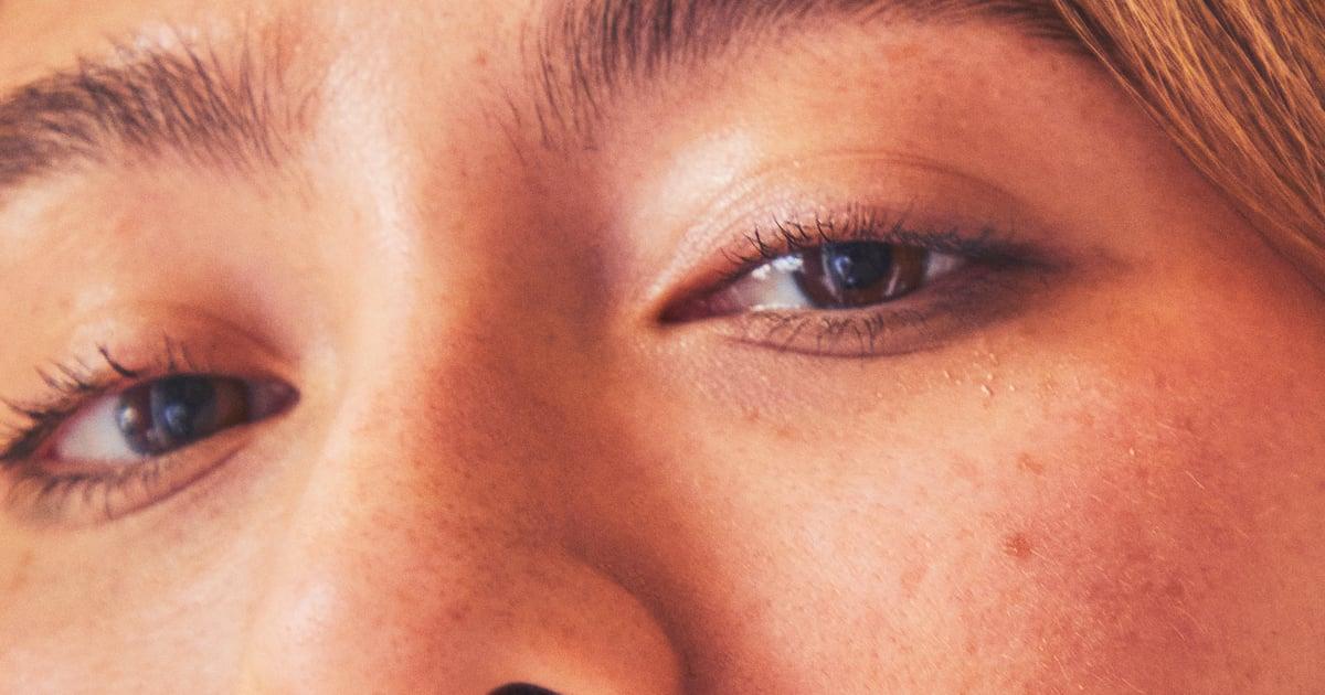 You Know Hyperpigmentation, but What Is Hypopigmentation? A Dermatologist Explains