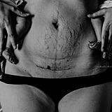 Love Your Postpartum Photo Series