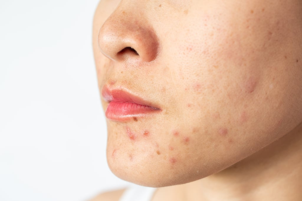 2021 Skin-Care Trend: Maskne Treatments