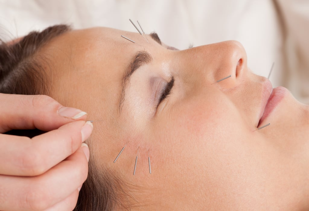 "What is acupuncture, and how does it work? During an acupuncture treatment, the practitioner inserts fine, sterile needles into specific pressure points on the skin to create local reactions. It is based in traditional Chinese medicine, wherein qi, or energy, flows along certain channels (known as meridians) in the body to keep you balanced. Should the qi be disrupted or blocked, acupuncture can stimulate and unblock the qi, activating healing responses in your body.  Though these beliefs are different from Western medicine, modern research has proven that acupuncture therapy can have significant effects on your body's various systems. Dr. Zhang blends Western and Eastern medicine to get the best results for each patient. ""For example, Chinese medicine states that if the lung is healthy, skin is healthy, but Western medicine says liver toxins can be the cause of poor skin health. Based on the needs of each patient, I choose which route to go for treatment."" What skin conditions can be treated with acupuncture? ""Acne, wrinkles, dermatitis, and eczema can all be treated with acupuncture,"" said Dr. Zhang. ""Sagging, dark spots, dullness, and enlarged pores can be improved, and even some types of hair loss respond to acupuncture."" Issues like male-pattern baldness and deeply damaged skin may be harder to treat. In his practice, he frequently treats acne, eczema, psoriasis, and hair loss caused by stress."