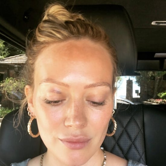 Hilary Duff's Son Accidentally Gave Her a Black Eye