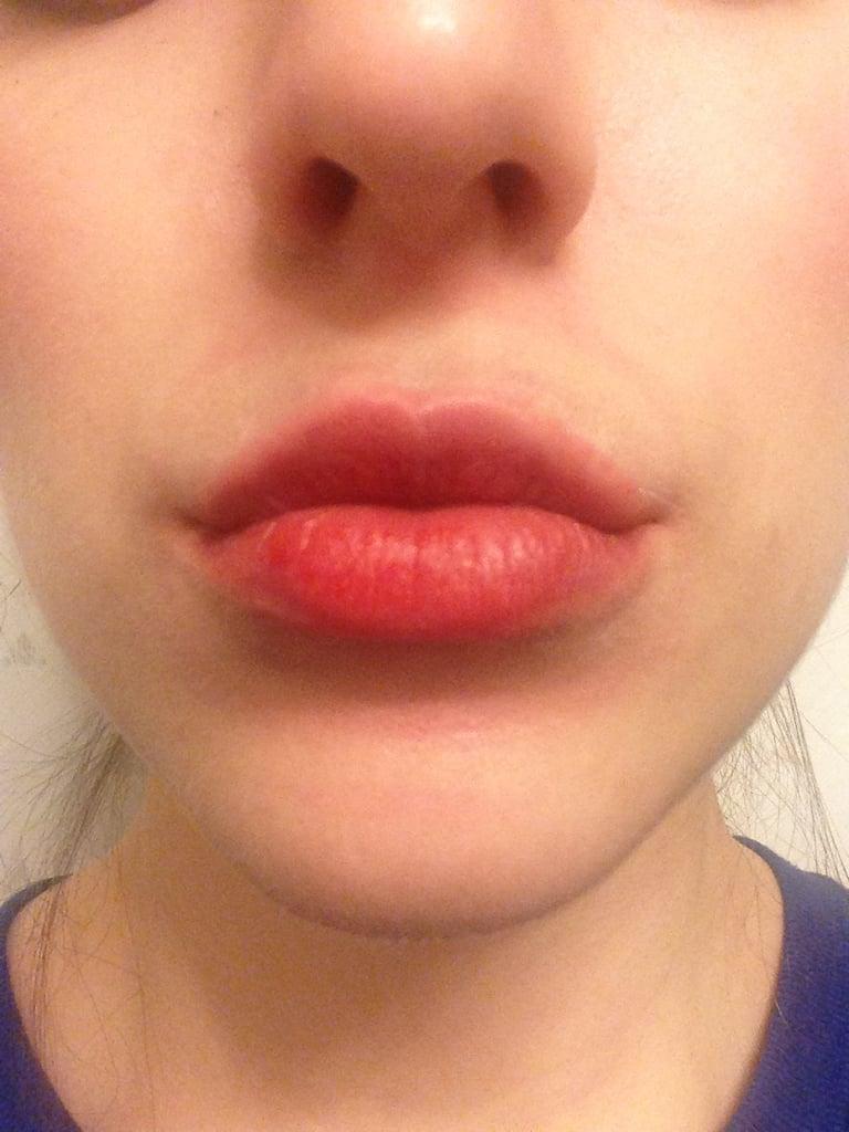 How To Get Full Lips Like Kylie Jenner
