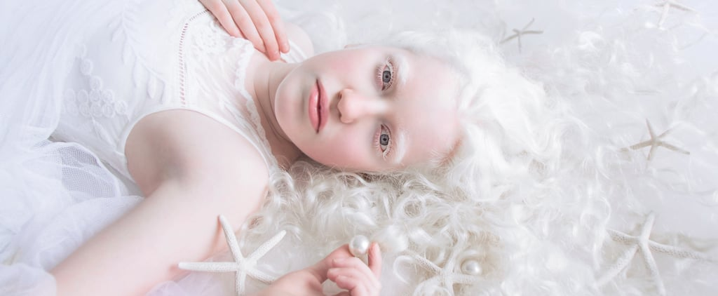 13 Spellbinding Photos of Gorgeous People With Albinism