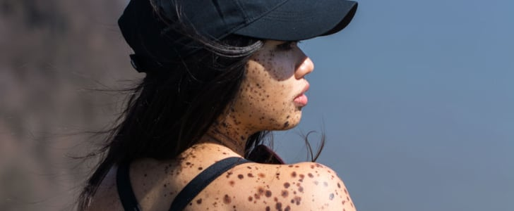 This Is What It's Like to Live With Birth Marks Covering Your Face and Body