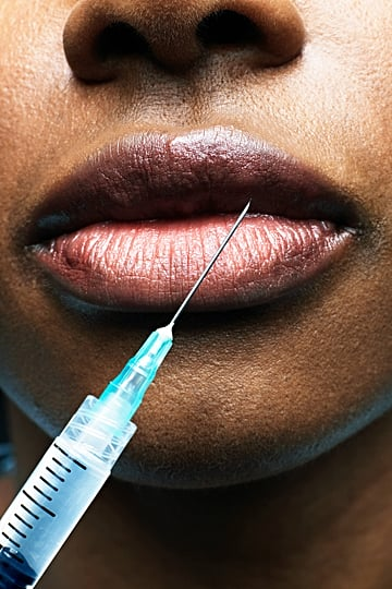 Can You Be Too Young For Preventative Botox? We Asked Pros
