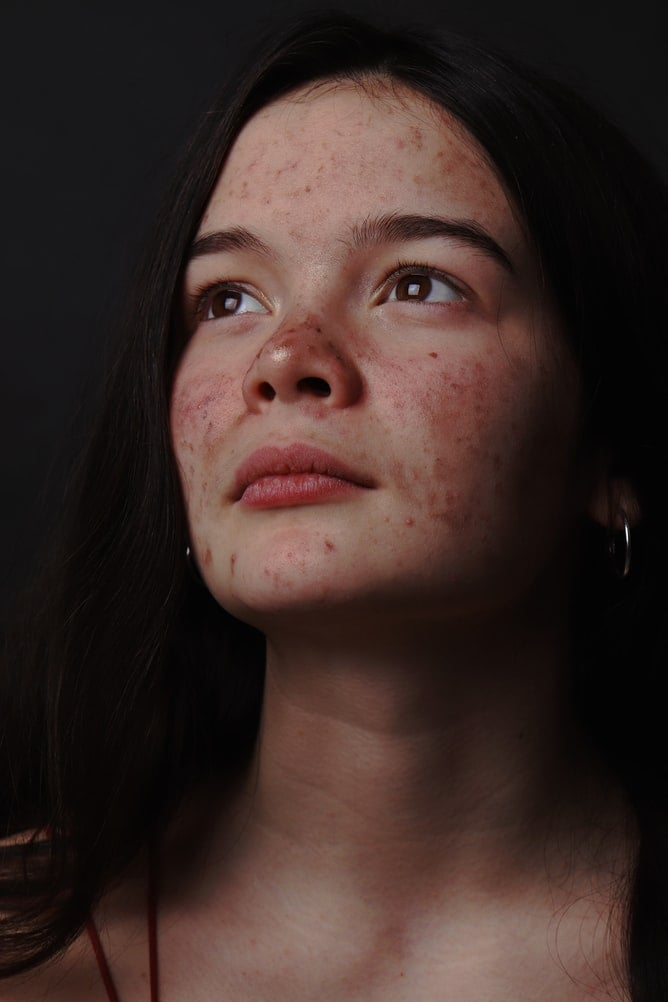 """What Are Acne Scars, and What Causes Them? Before we get into how to treat acne scars, it's important to understand what they are: visible raised marks and indentations left behind due to skin damage from a pimple or serious acne.  """"Acne scars are when the blemish damages the top layer of skin as well as the deeper levels of the skin,"""" Worden told POPSUGAR. """"It damages the skin and leaves you with an indentation like a pockmark or crater in the skin.""""  Acne can be caused by a multitude of factors: genetics, environment, hormones, diet, sebum production, pH of skin, bacteria buildup, medication, and inflammation. As the inflammation subsides and the skin attempts to heal itself, scar tissue can form. Scars could look different depending on skin type and skin tone. Light-color skin tones will often produce red marks after acne, whereas darker complexions show brown marks after acne. What's the Difference Between Acne Scars and Acne Marks? The main difference is the level of permanence. """"Acne marks are red (erythema) or brown (hyperpigmentation) discolored marks that are temporary, taking just a few months to fade and heal,"""" Worden said. Acne scars, however, can be permanent if not treated early on. According to Dr. Engelman, acne marks can include dark marks or hyperpigmentation, which are not raised. One telltale way to know the difference: acne scars have a texture. """"They are raised or depressed marks that are able to be felt on the skin,"""" she said."""