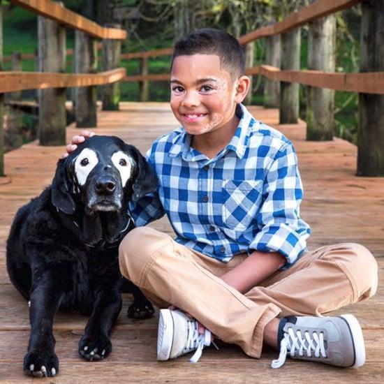 Boy With Vitiligo Meets Dog With Same Condition (Video)